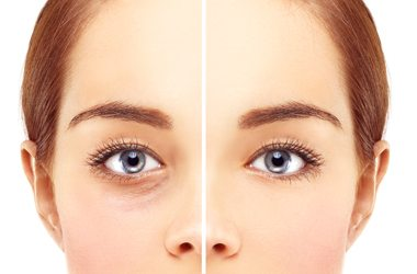 Augenringe Entfernen Schonheitsklinik Praxis Dr Yusuf Yildirim Aesthetics